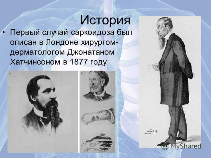 История Первый случай саркоидоза был описан в Лондоне хирургом- дерматологом Джонатаном Хатчинсоном в 1877 году