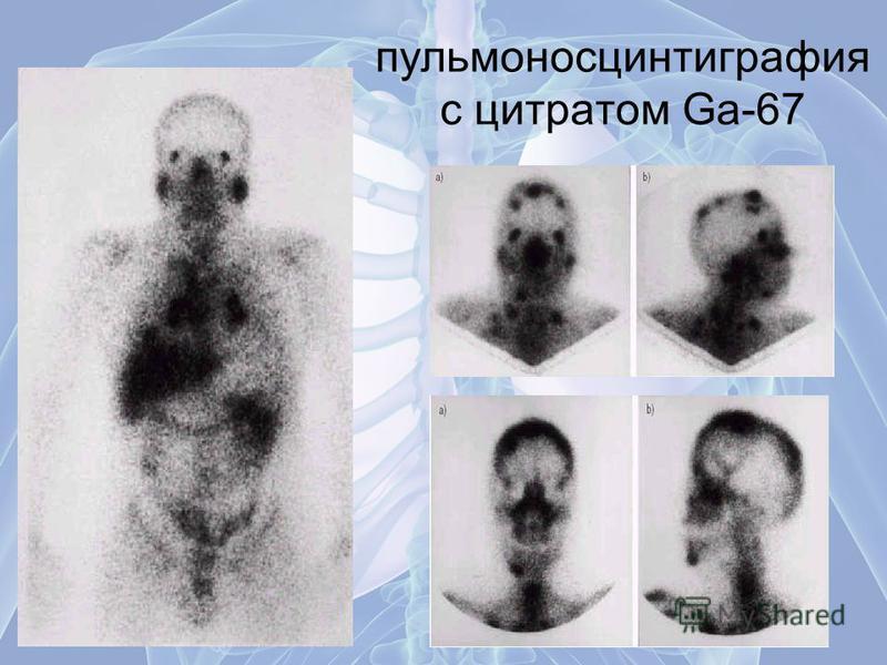 пульмоносцинтиграфия с цитратом Ga-67