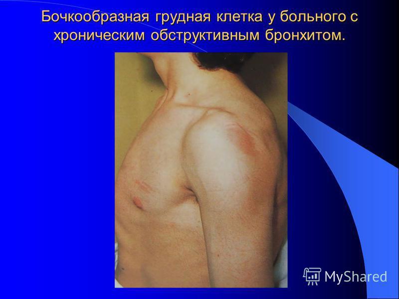 Бочкообразная грудная клетка у больного с хроническим обструктивным бронхитом.