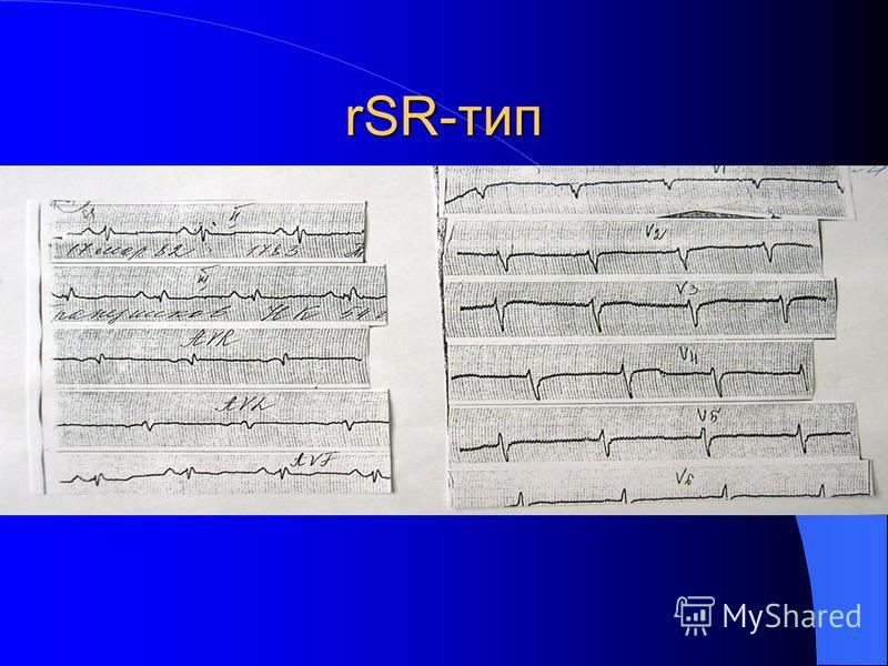 rSR-тип
