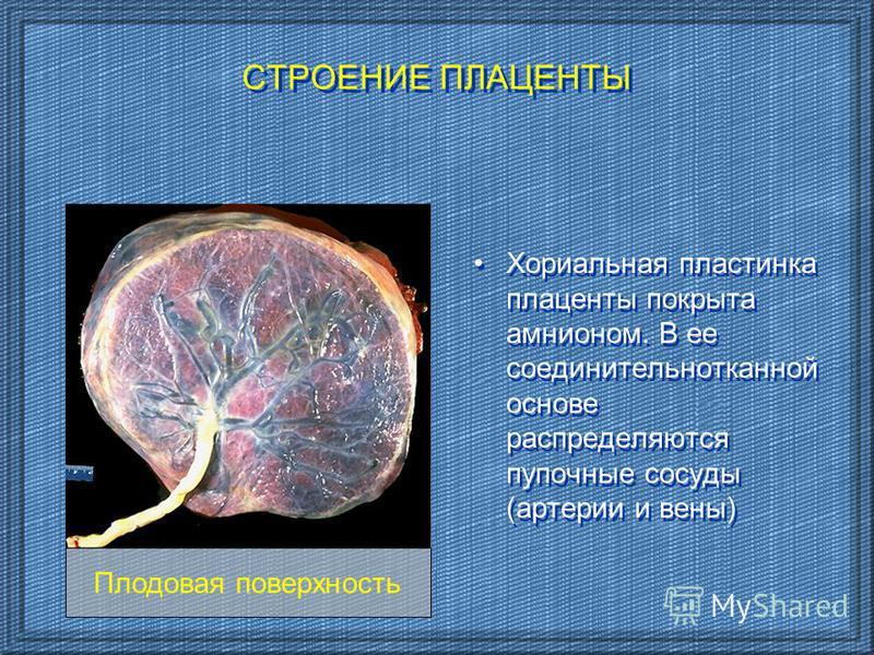 СТРОЕНИЕ ПЛАЦЕНТЫ Хориальная пластинка плаценты покрыта амнионом. В ее соединительнотканной основе распределяются пупочные сосуды (артерии и вены) Плодовая поверхность