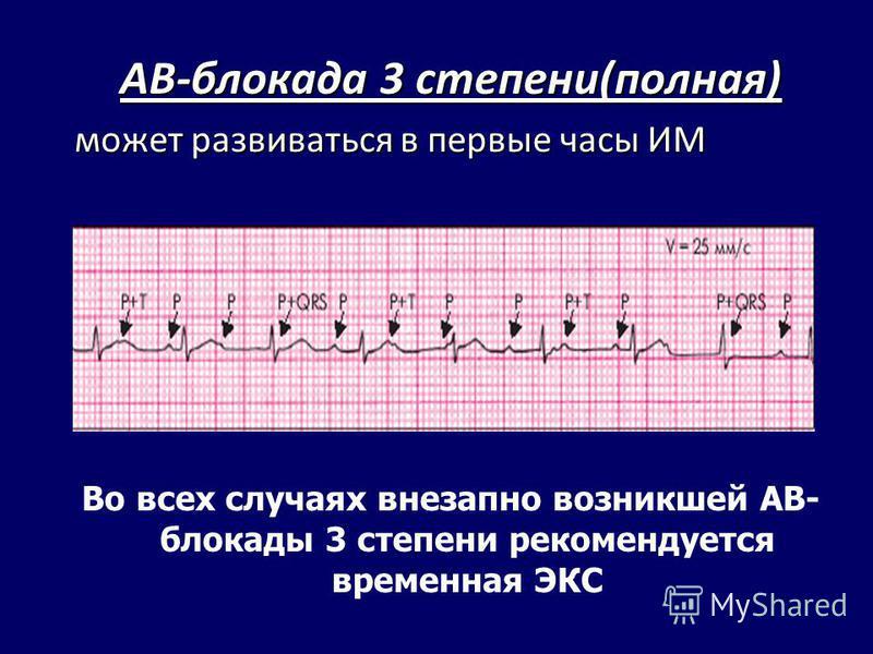 АВ-блокада 3 степени(полная) может развиваться в первые часы ИМ Во всех случаях внезапно возникшей АВ- блокады 3 степени рекомендуется временная ЭКС