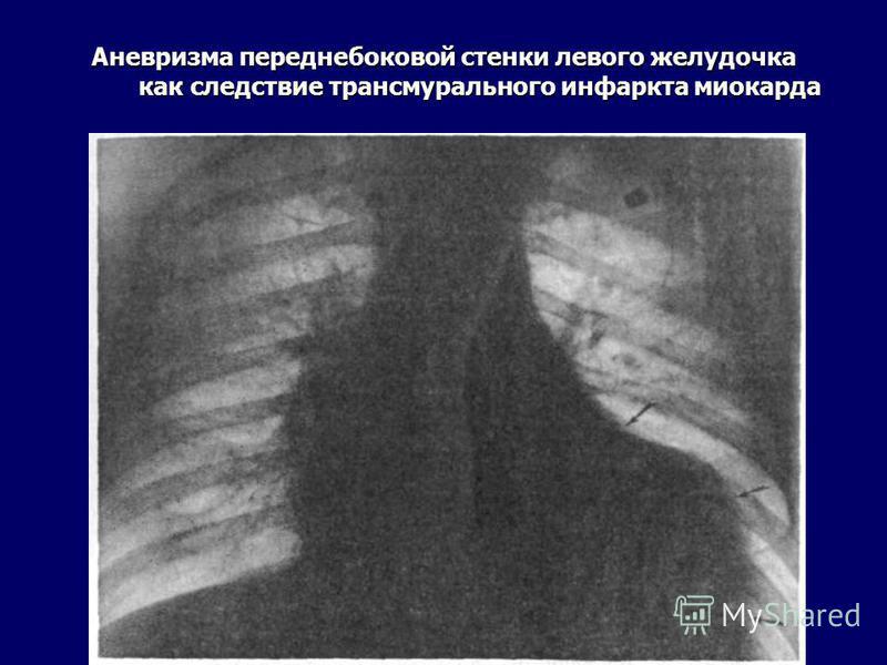 Аневризма переднебоковой стенки левого желудочка как следствие трансмурального инфаркта миокарда