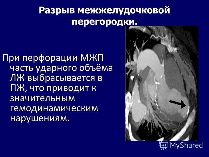 Разрыв межжелудочковой перегородки. При перфорации МЖП часть ударного объёма ЛЖ выбрасывается в ПЖ, что приводит к значительным гемодинамическим нарушениям.