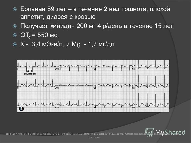 Больная 89 лет – в течение 2 нед тошнота, плохой аппетит, диарея с кровью Получает хинидин 200 мг 4 р/день в течение 15 лет QT c = 550 мс, К - 3,4 м Экв/л, и Мg - 1,7 мг/дл Proc (Bayl Univ Med Cent). 2010 Jul;23(3):250-5. Ayad RF, Assar MD, Simpson L