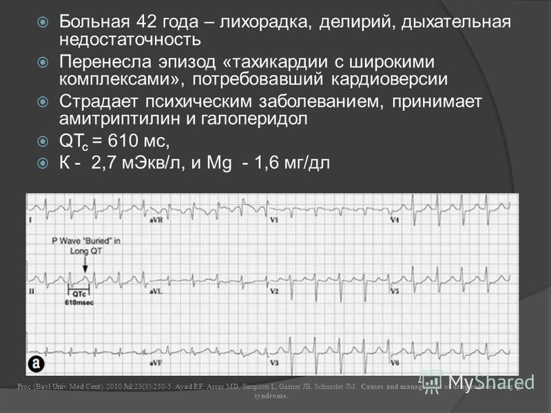 Больная 42 года – лихорадка, делирий, дыхательная недостаточность Перенесла эпизод «тахикардии с широкими комплексами», потребовавший кардиоверсии Страдает психическим заболеванием, принимает амитриптилин и галоперидол QT c = 610 мс, К - 2,7 м Экв/л,