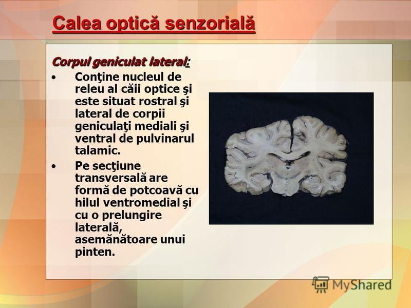 Calea optică senzorială Corpul geniculat lateral Corpul geniculat lateral: Conţine nucleul de releu al căii optice şi este situat rostral şi lateral de corpii geniculaţi mediali şi ventral de pulvinarul talamic. Pe secţiune transversală are formă de