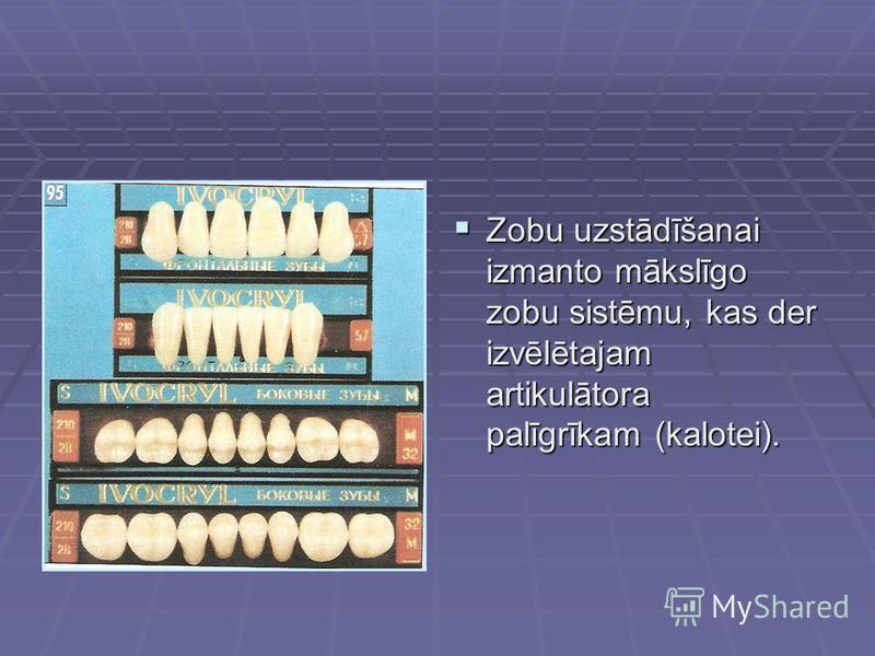 Zobu uzstādīšanai izmanto mākslīgo zobu sistēmu, kas der izvēlētajam artikulātora palīgrīkam (kalotei). Zobu uzstādīšanai izmanto mākslīgo zobu sistēmu, kas der izvēlētajam artikulātora palīgrīkam (kalotei).