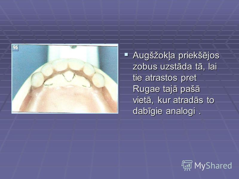 Augšžokļa priekšējos zobus uzstāda tā, lai tie atrastos pret Rugae tajā pašā vietā, kur atradās to dabīgie analogi. Augšžokļa priekšējos zobus uzstāda tā, lai tie atrastos pret Rugae tajā pašā vietā, kur atradās to dabīgie analogi.