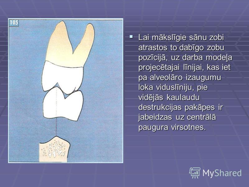 Lai mākslīgie sānu zobi atrastos to dabīgo zobu pozīcijā, uz darba modeļa projecētajai līnijai, kas iet pa alveolāro izaugumu loka viduslīniju, pie vidējās kaulaudu destrukcijas pakāpes ir jabeidzas uz centrālā paugura virsotnes. Lai mākslīgie sānu z