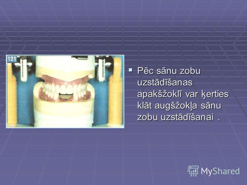 Pēc sānu zobu uzstādīšanas apakšžoklī var ķerties klāt augšžokļa sānu zobu uzstādīšanai. Pēc sānu zobu uzstādīšanas apakšžoklī var ķerties klāt augšžokļa sānu zobu uzstādīšanai.