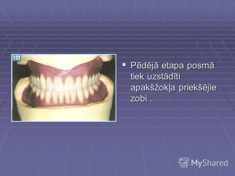 Pēdējā etapa posmā tiek uzstādīti apakšžokļa priekšējie zobi. Pēdējā etapa posmā tiek uzstādīti apakšžokļa priekšējie zobi.