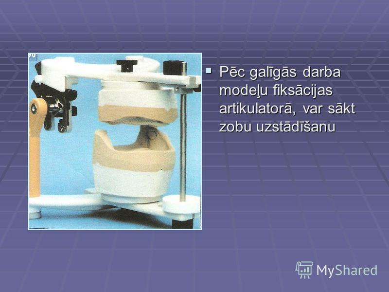 Pēc galīgās darba modeļu fiksācijas artikulatorā, var sākt zobu uzstādīšanu Pēc galīgās darba modeļu fiksācijas artikulatorā, var sākt zobu uzstādīšanu