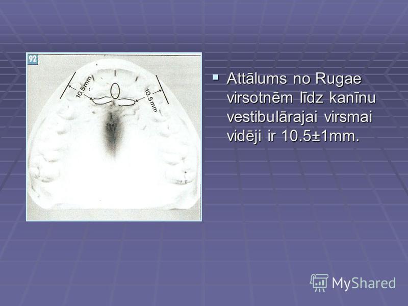 Attālums no Rugae virsotnēm līdz kanīnu vestibulārajai virsmai vidēji ir 10.5±1mm. Attālums no Rugae virsotnēm līdz kanīnu vestibulārajai virsmai vidēji ir 10.5±1mm.
