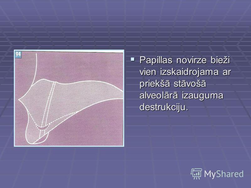Papillas novirze bieži vien izskaidrojama ar priekšā stāvošā alveolārā izauguma destrukciju. Papillas novirze bieži vien izskaidrojama ar priekšā stāvošā alveolārā izauguma destrukciju.