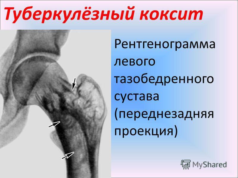 Туберкулёзный коксит Рентгенограмма левого тазобедренного сустава (переднезадняя проекция)