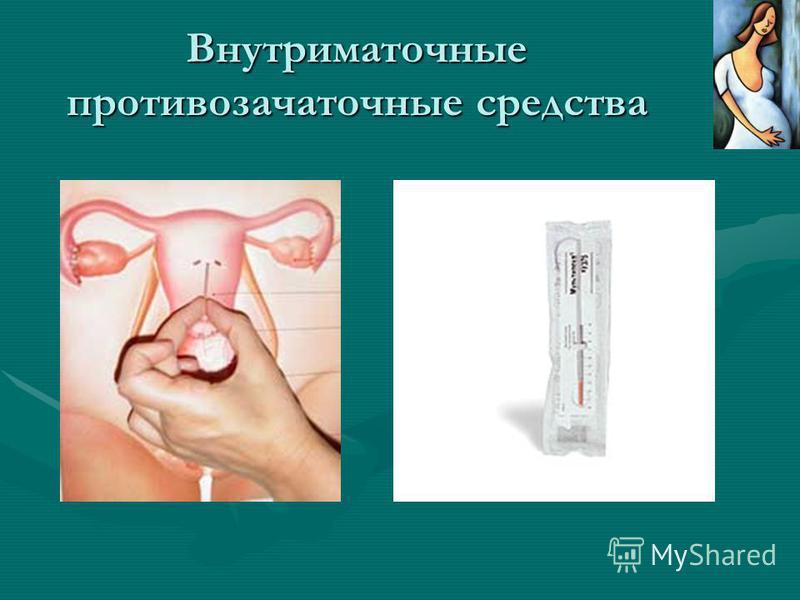 Внутриматочные противозачаточные средства