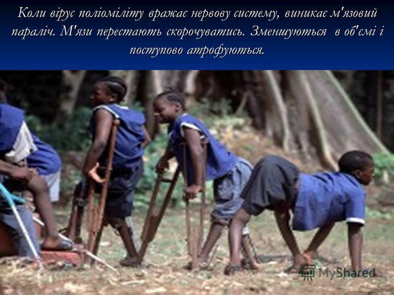 Коли вірус поліоміліту вражає нервову систему, виникає м'язовий параліч. М'язи перестають скорочуватись. Зменшуються в об'ємі і поступово атрофуються.