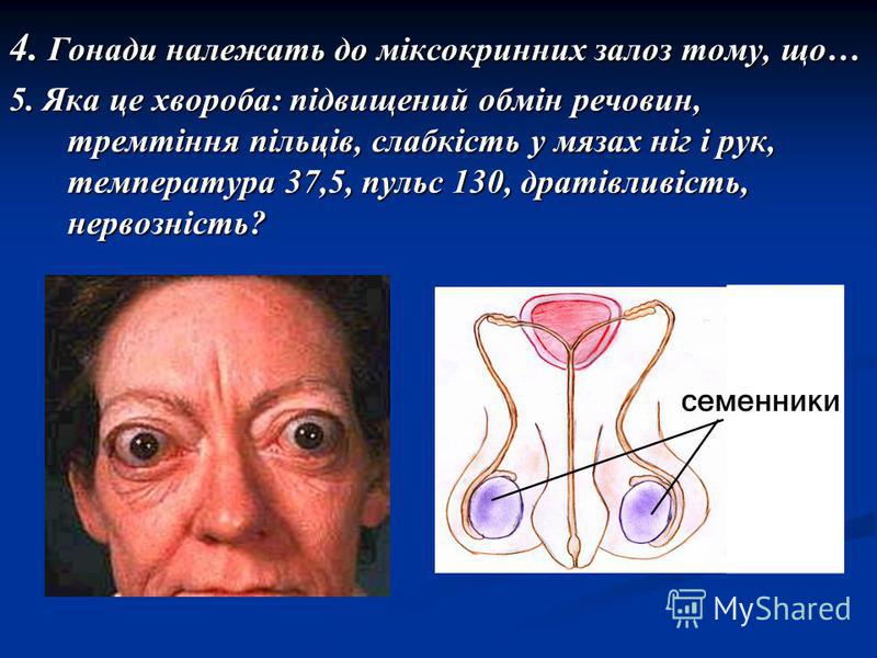 4. Гонади належать до міксокринних залоз тому, що… 5. Яка це хвороба: підвищений обмін речовин, тремтіння пільців, слабкість у мязах ніг і рук, температура 37,5, пульс 130, дратівливість, нервозність?
