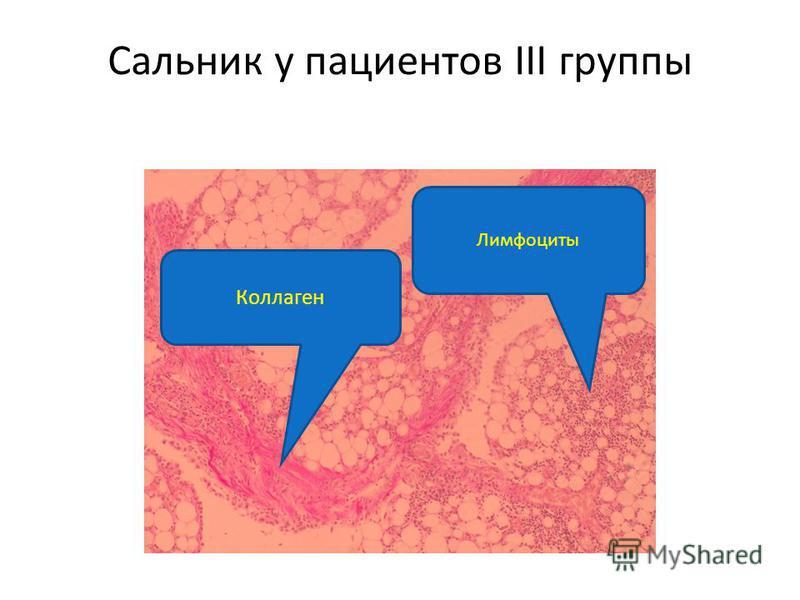Сальник у пациентов III группы Коллаген Лимфоциты