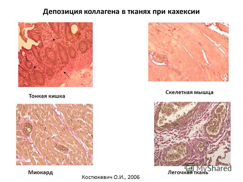 Депозиция коллагена в тканях при кахексии Тонкая кишка Скелетная мышца Миокард Легочная ткань Костюкевич О.И., 2006