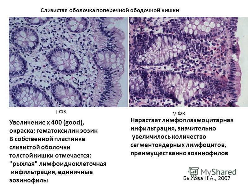 Увеличение х 400 (good), окраска: гематоксилин эозин В собственной пластинке слизистой оболочки толстой кишки отмечается: