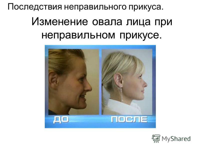 Изменение овала лица при неправильном прикусе. Последствия неправильного прикуса.