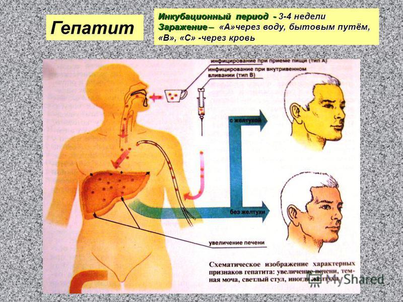 Гепатит Инкубационный период - 3-4 недели Заражение – «А»через воду, бытовым путём, «В», «С» -через кровь