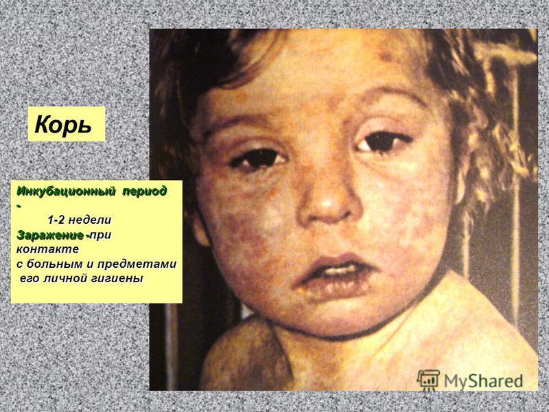 Корь Инкубационный период - 1-2 недели 1-2 недели Заражение -при контакте с больным и предметами его личной гигиены его личной гигиены