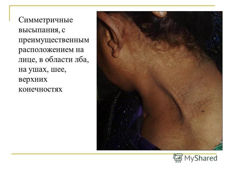Симметричные высыпания, с преимущественным расположением на лице, в области лба, на ушах, шее, верхних конечностях