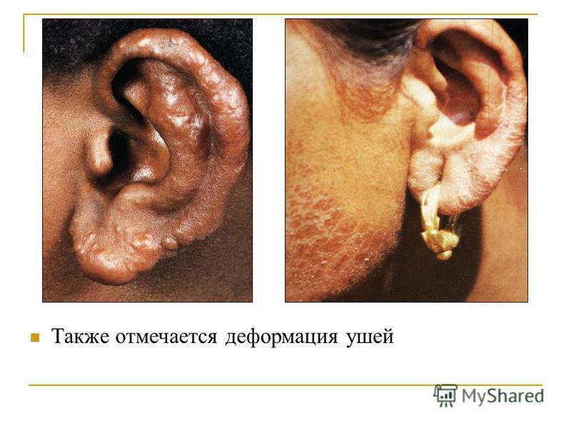 Также отмечается деформация ушей