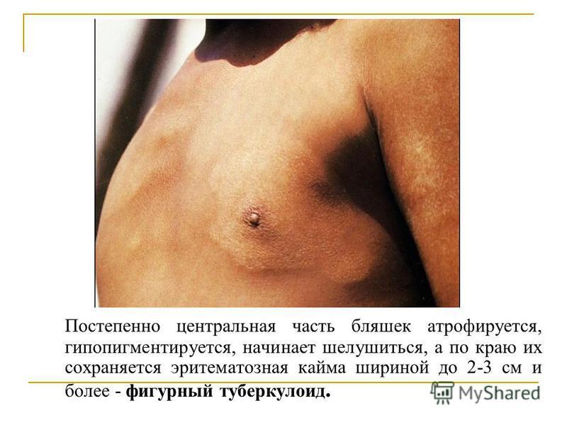 Постепенно центральная часть бляшек атрофируется, гипопигментируется, начинает шелушиться, а по краю их сохраняется эритематозная кайма шириной до 2-3 см и более - фигурный туберкулоид.