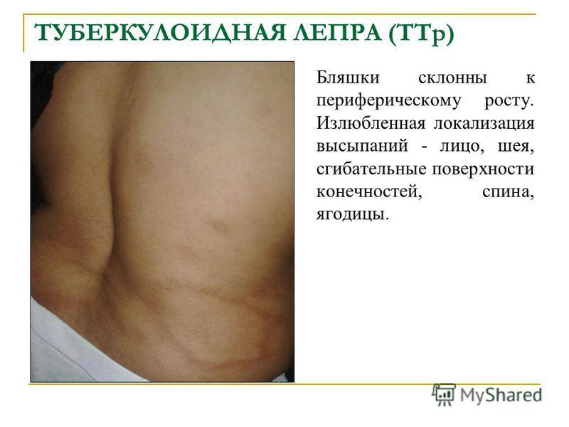 ТУБЕРКУЛОИДНАЯ ЛЕПРА (TTp) Бляшки склонны к периферическому росту. Излюбленная локализация высыпаний - лицо, шея, сгибательные поверхности конечностей, спина, ягодицы.