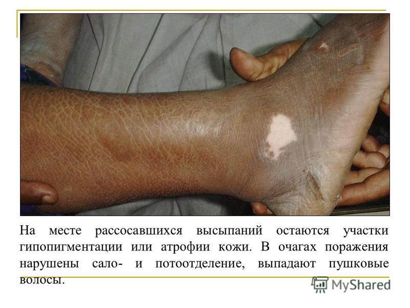 На месте рассосавшихся высыпаний остаются участки гипопигментации или атрофии кожи. В очагах поражения нарушены сало- и потоотделение, выпадают пушковые волосы.