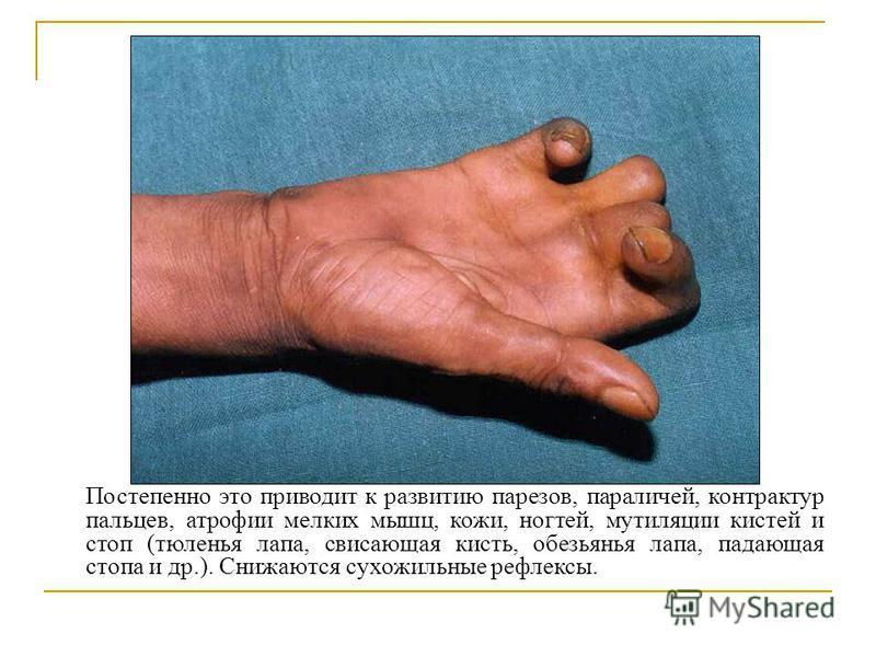 Постепенно это приводит к развитию парезов, параличей, контрактур пальцев, атрофии мелких мышц, кожи, ногтей, мутиляции кистей и стоп (тюленья лапа, свисающая кисть, обезьянья лапа, падающая стопа и др.). Снижаются сухожильные рефлексы.