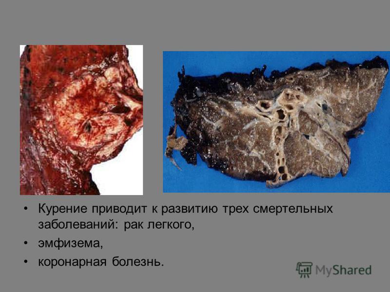Курение приводит к развитию трех смертельных заболеваний: рак легкого, эмфизема, коронарная болезнь.