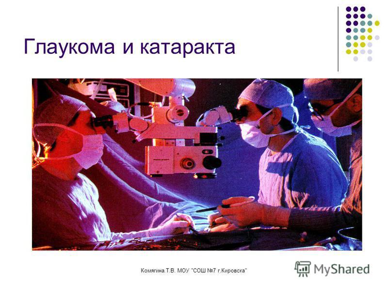 Комягина Т.В. МОУ СОШ 7 г.Кировска Глаукома и катаракта