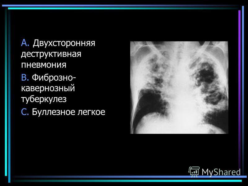 A. Двухсторонняя деструктивная пневмония B. Фиброзно- кавернозный туберкулез C. Буллезное легкое