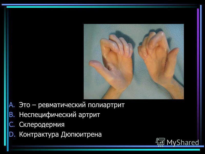 A.Это – ревматический полиартрит B.Неспецифический артрит C.Склеродермия D.Контрактура Дюпюитрена