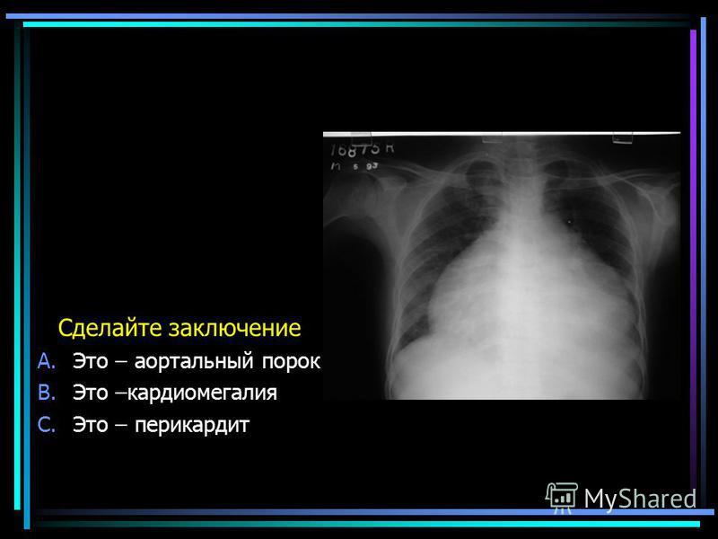 Сделайте заключение A.Это – аортальный порок B.Это –кардиомегалия C.Это – перикардит