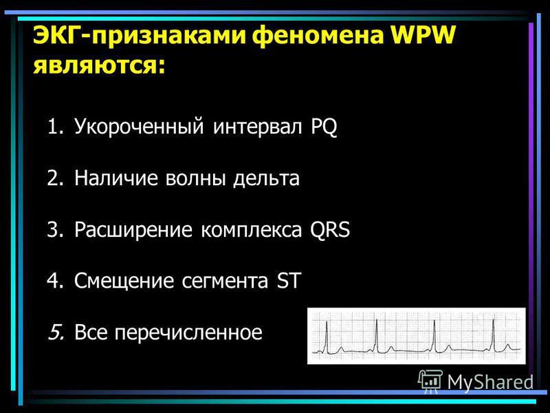 ЭКГ-признаками феномена WPW являются: 1. Укороченный интервал PQ 2. Наличие волны дельта 3. Расширение комплекса QRS 4. Смещение сегмента ST 5. Все перечисленное