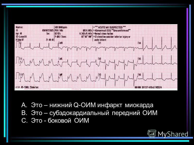 A.Это – нижний Q-ОИМ инфаркт миокарда B.Это – субэдокардиальный передний ОИМ C.Это - боковой ОИМ