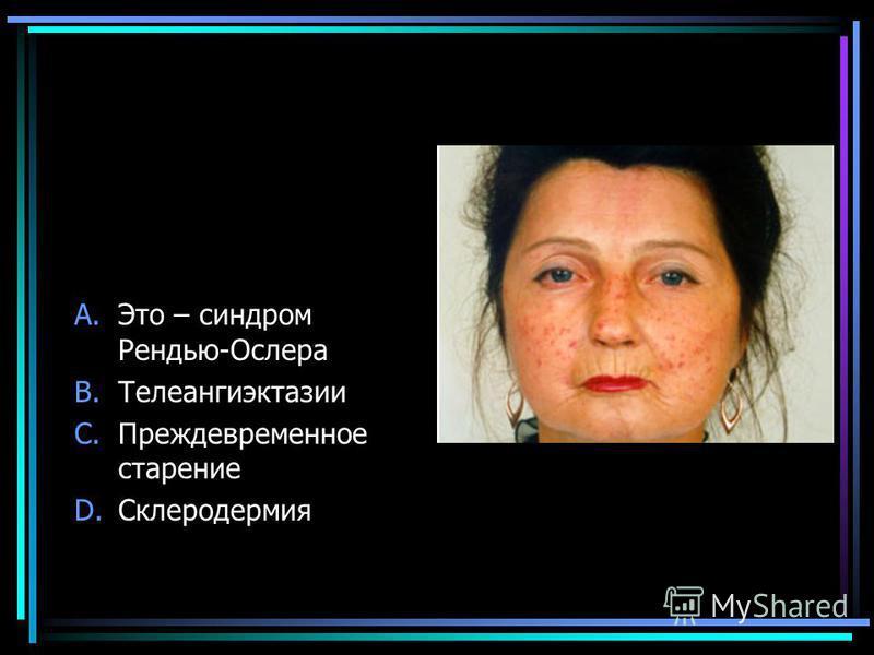 A.Это – синдром Рендью-Ослера B.Телеангиэктазии C.Преждевременное старение D.Склеродермия