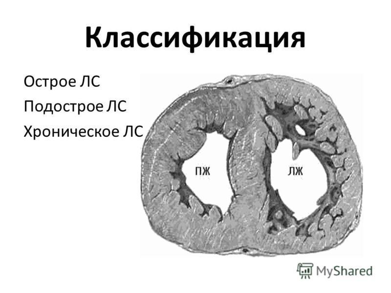 Классификация Острое ЛС Подострое ЛС Хроническое ЛС