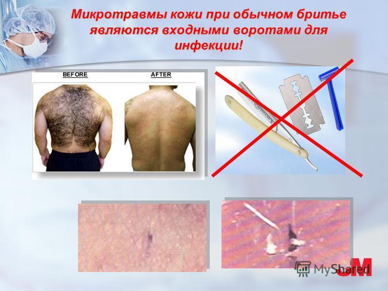 Микротравмы кожи при обычном бритье являются входными воротами для инфекции!
