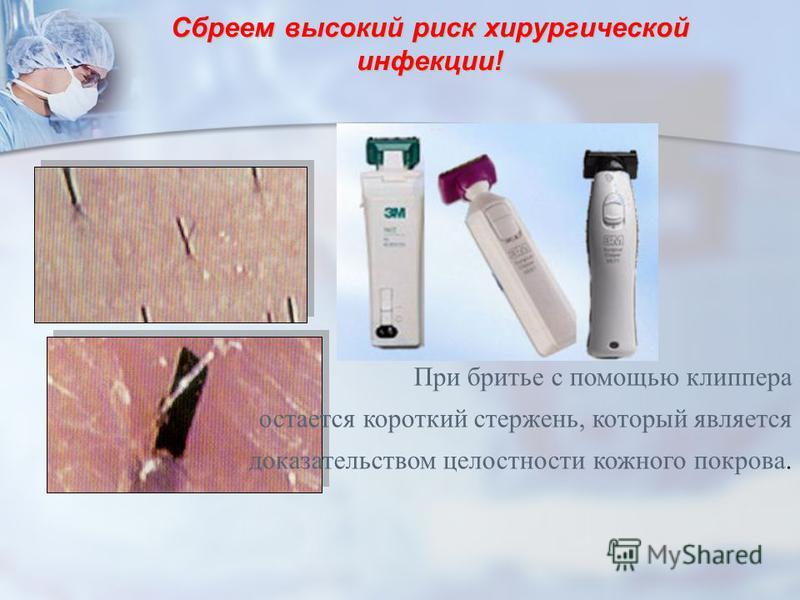 Сбреем высокий риск хирургической инфекции! При бритье с помощью клиппера остается короткий стержень, который является доказательством целостности кожного покрова.