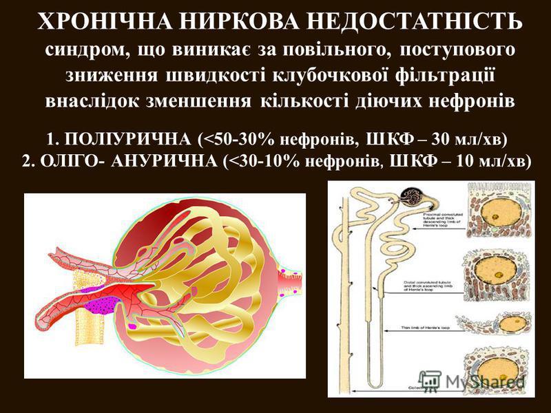 ХРОНІЧНА НИРКОВА НЕДОСТАТНІСТЬ синдром, що виникає за повільного, поступового зниження швидкості клубочкової фільтрації внаслідок зменшення кількості діючих нефронів 1. ПОЛІУРИЧНА (<50-30% нефронів, ШКФ – 30 мл/хв) 2. ОЛІГО- АНУРИЧНА (<30-10% нефроні