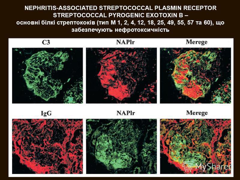 NEPHRITIS-ASSOCIATED STREPTOCOCCAL PLASMIN RECEPTOR STREPTOCOCCAL PYROGENIC EXOTOXIN B – основні білкі стрептококів (тип М 1, 2, 4, 12, 18, 25, 49, 55, 57 та 60), що забезпечують нефротоксичність