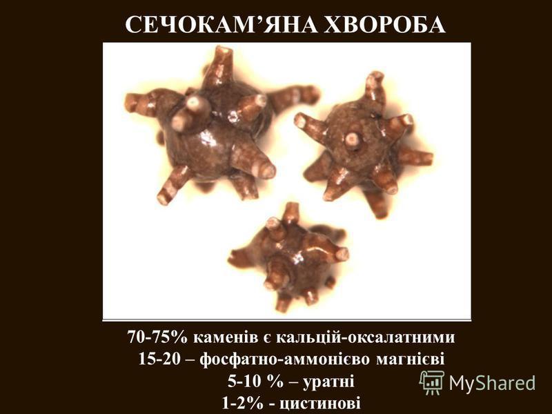 СЕЧОКАМЯНА ХВОРОБА 70-75% каменів є кальцій-оксалатними 15-20 – фосфатно-аммонієво магнієві 5-10 % – уратні 1-2% - цистинові