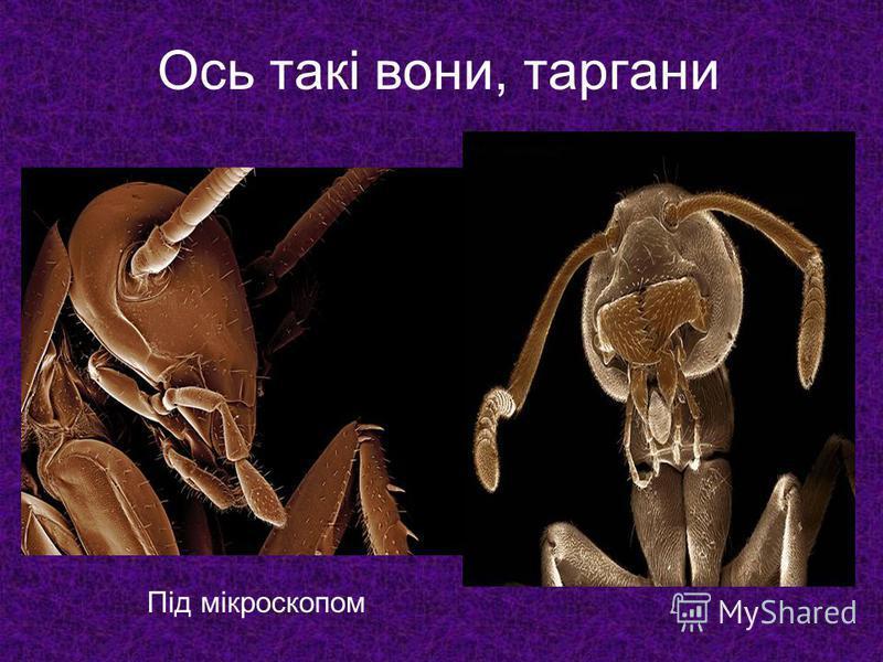 Під мікроскопом Ось такі вони, таргани